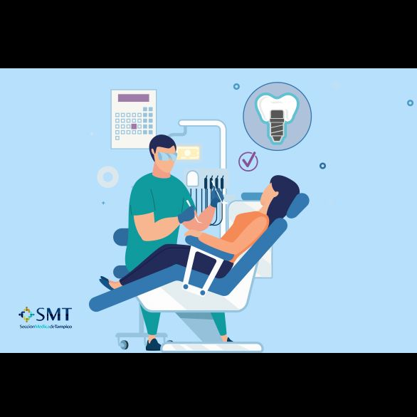 Implantólogos orales en Tampico