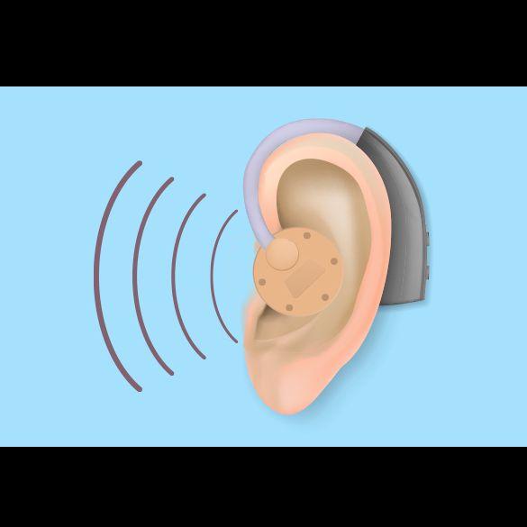 Aparatos auditivos en Tampico