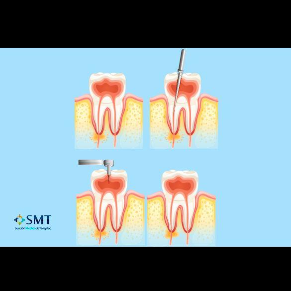 Endodoncistas en Tampico